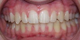 Braces After Treatment Orthodontics in Chino, CA