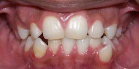 Summit Orthodontics Braces Treatment