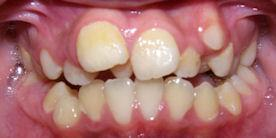 Braces Before Orthodontic Treatment Rancho Cucamonga, CA
