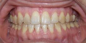 Braces Treatment after Surgery Chino Hills, CA