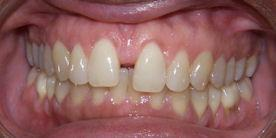 Orthodontic Treatment Spacing Before